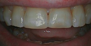 Postop anterior photo after treatment at Durham DDS.
