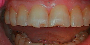 Preop anterior photo before treatment at Durham DDS.