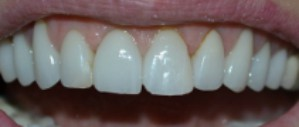 Postop anterior photo after fractured veneer treatment at Durham DDS.