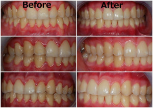 In the before images, the gums look red and swollen. In the after images, the gums are healthy, pink, and firm.