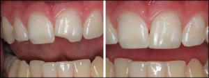 A before and after view of a repaired tooth chip.