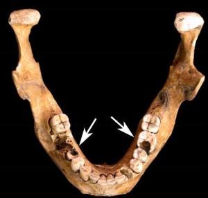 agriculturaljawbone