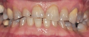 heavy-tooth-wear-treated-with-emax-porcelain-crowns-dental-rehabilitation-inside-mouth-before